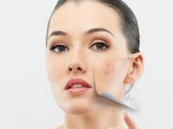 Remedios caseros para el acné