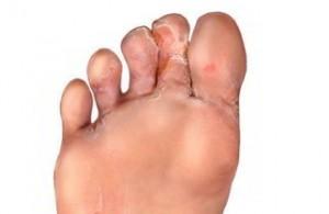Remedios caseros para pie de atleta – Hongos en los pies