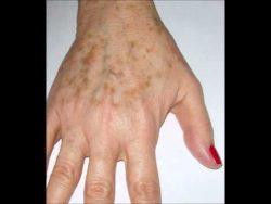 Remedios caseros para quitar las manchas por edad