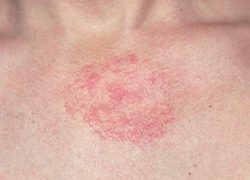 Remedios caseros para tratar el edema